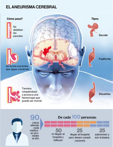 Infografía de características del aneurisma cerebral